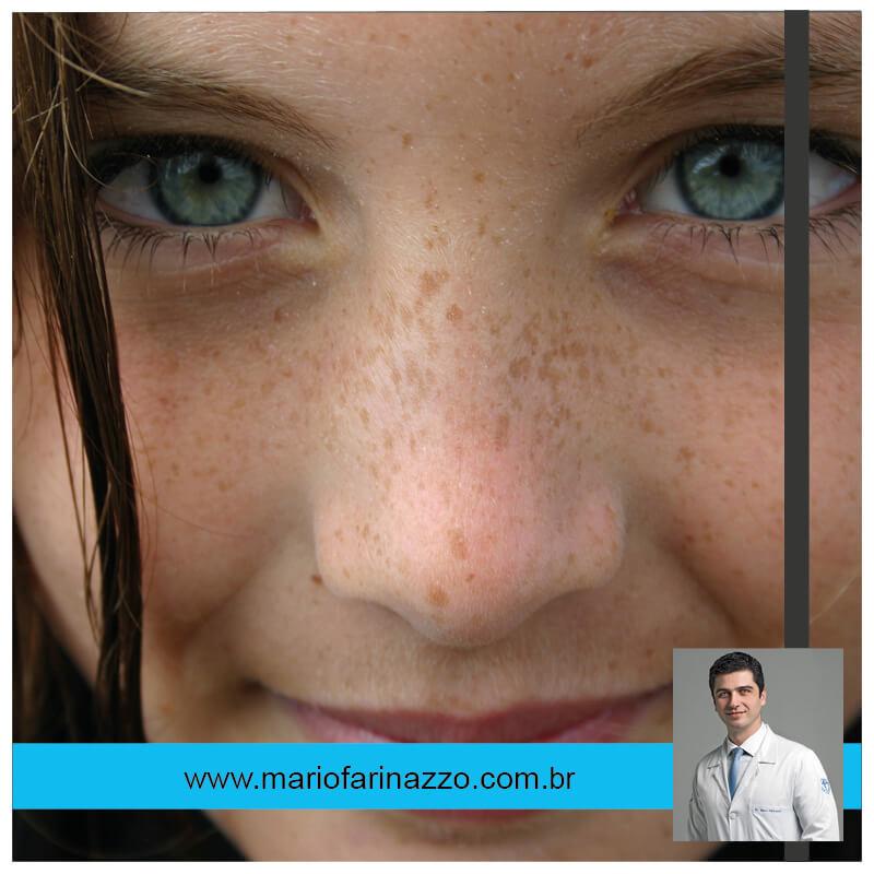 Face-olhos verdes